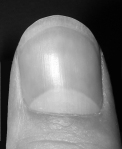 Lunula: A small crescent-shaped structure or marking, esp. the white area at the base of a fingernail that resembles a half-moon. Original photo cred: http://en.wikipedia.org/wiki/File:Thumbnail1.jpg